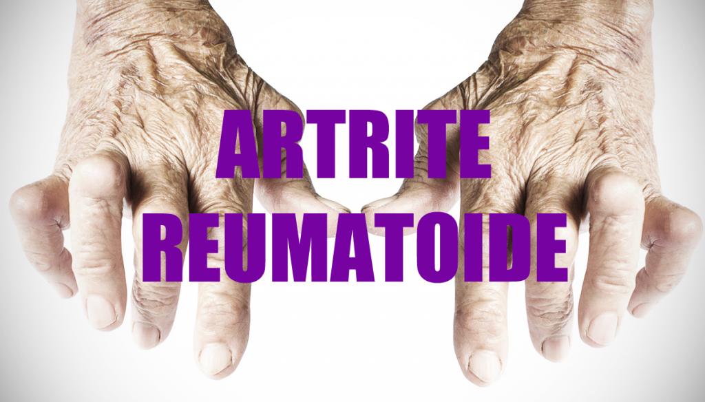 Artrite reumatoide: cosa fa il digiuno sull'attività della malattia